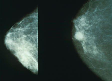 Mammo breast cancer
